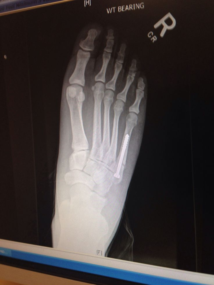 height of kitchen bench ikea counters jones fracture | pinterest
