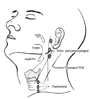 168 best Voice Disorders images on Pinterest