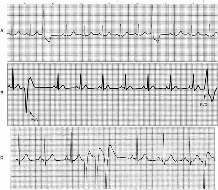 HESI Case Studies; CAD; ECG strips w/Ventricular
