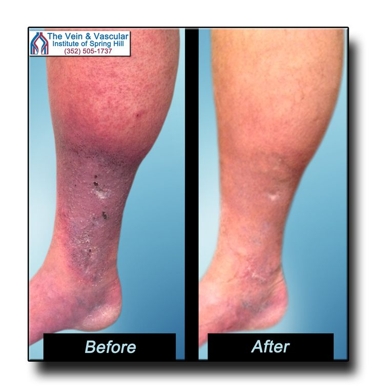 This patient was starting to develop leg ulcers from poor ...