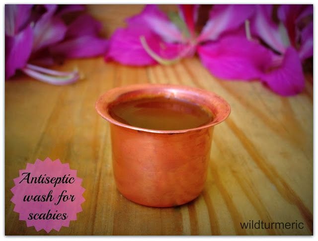 Homemade Antiseptic Wash For Scabies Home Remedies For