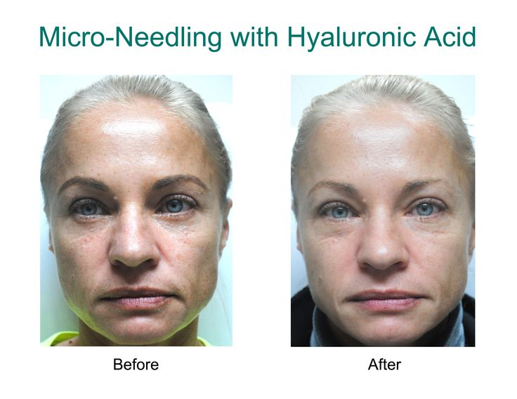 how often to microneedle under eyes