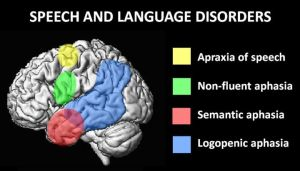 Areas of the brain affected by speech and language