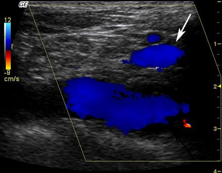 Left Innominate Vein On Ultrasound