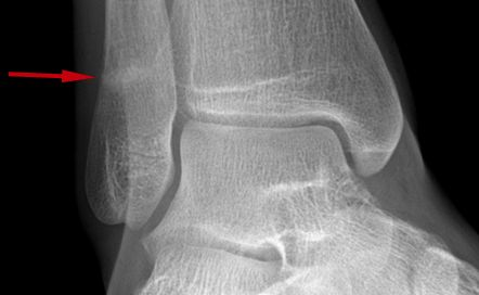 diagram of tibia stress fracture roller door key switch wiring hairline ankle x-ray | pinterest