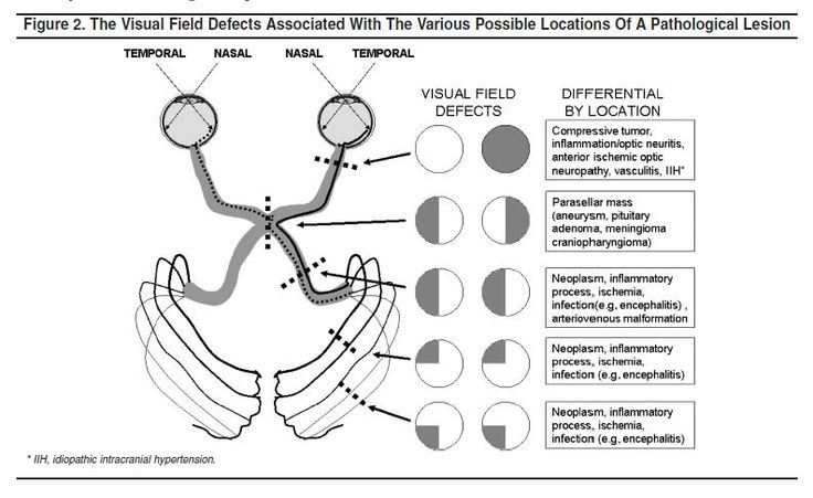 Lesions that compromise the transmission of visual input