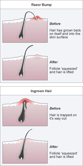 Ingrown Hair Pseudofolloculitis Barbae Are Ps Ca By Shaving Most Common In