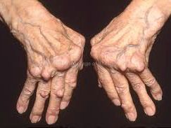 No wonder this has gone viral!!! MINDBLOWING! Did you know that the most potent ‎arthritis‬ ‪‎cure‬ ever discovered has