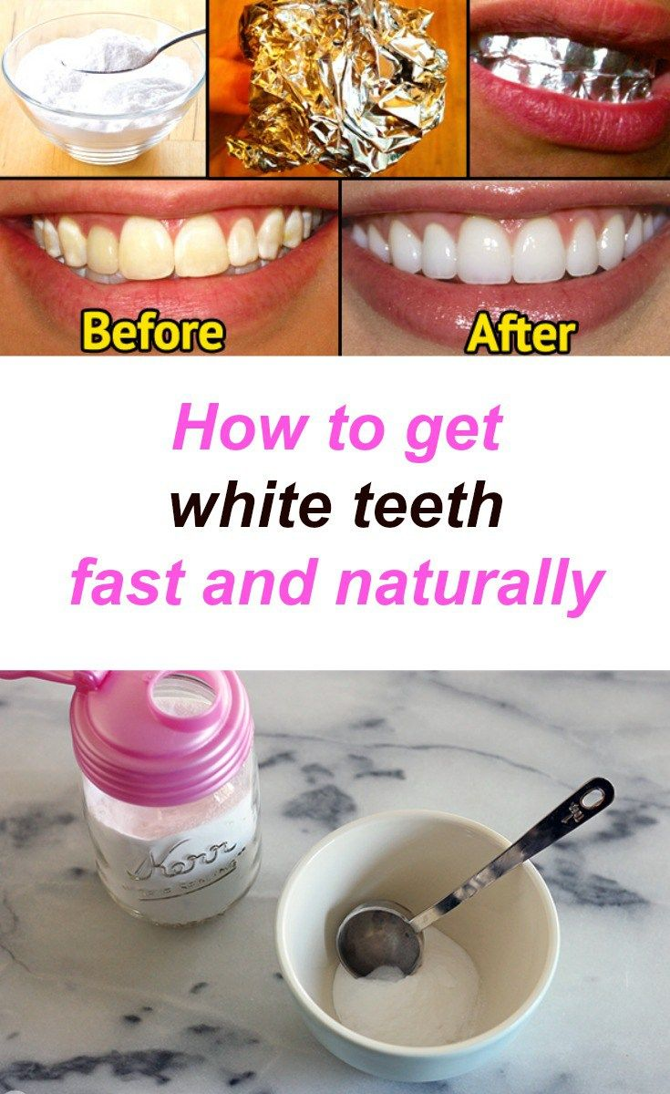 How to get white teeth fast and naturally teeth and natural