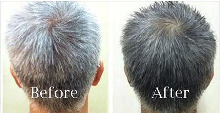 25 Best Ideas About Premature Grey Hair On Pinterest
