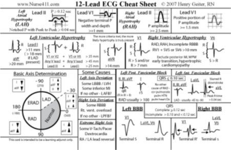 97 best images about ECG teaching resources on Pinterest