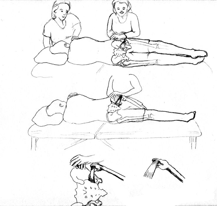 Pelvic Floor with Sidelying Release sketch (Pregnancy