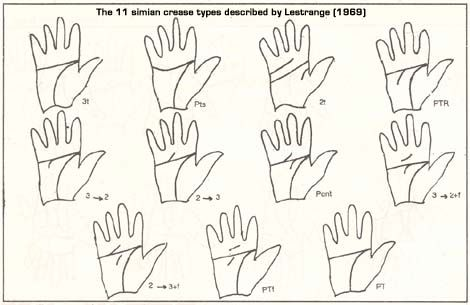 Lestrange (1969) described 11 simian crease types