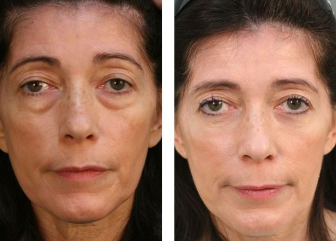 20 Best Yoga Face Exercises To Cure Eye Bags Images On