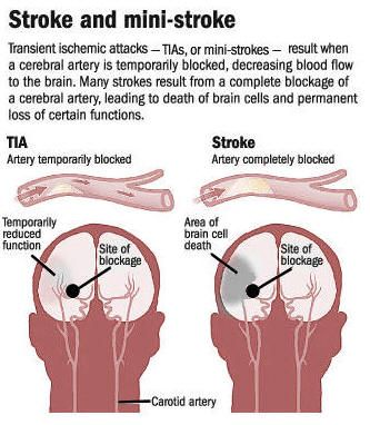 Image result for transient ischemic attack (tia)