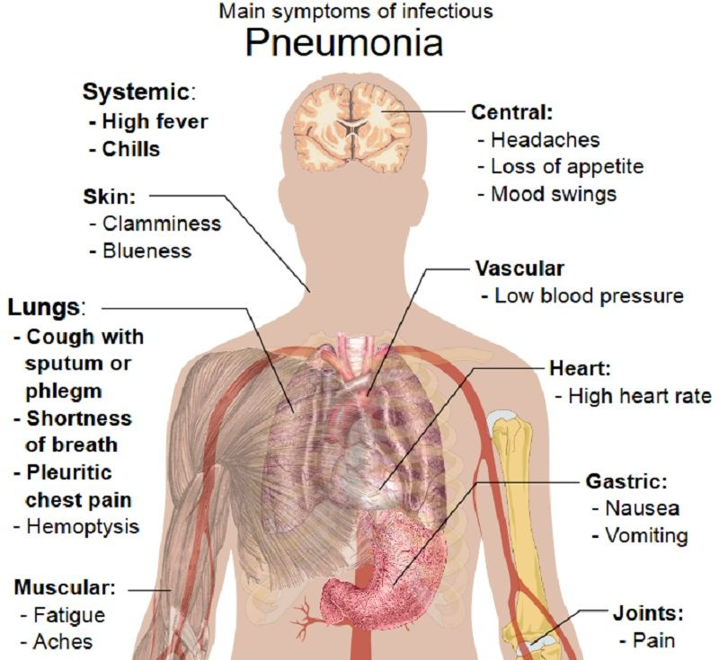 signs and symptoms of pneumonia medical pins pinterest signs