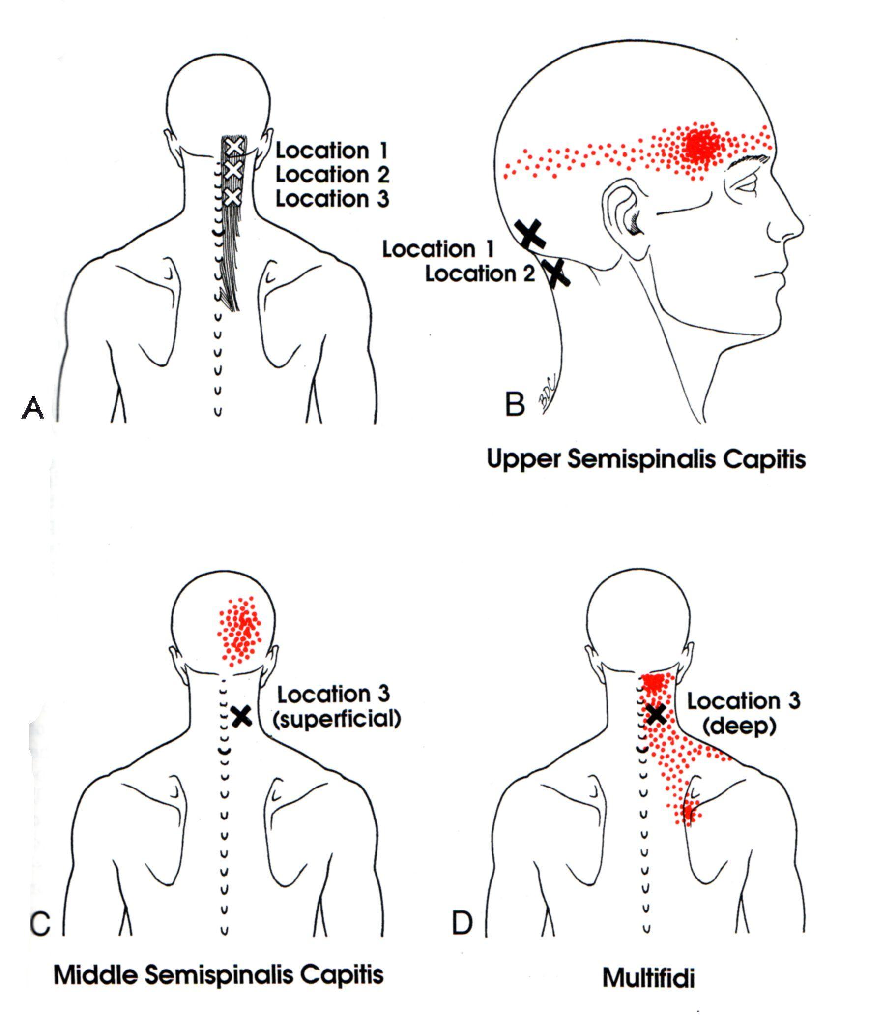 Semispinalis Capitis