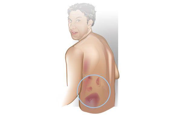 Turner's Sign- Ecchymoses on Flanks- Pancreatitis ...