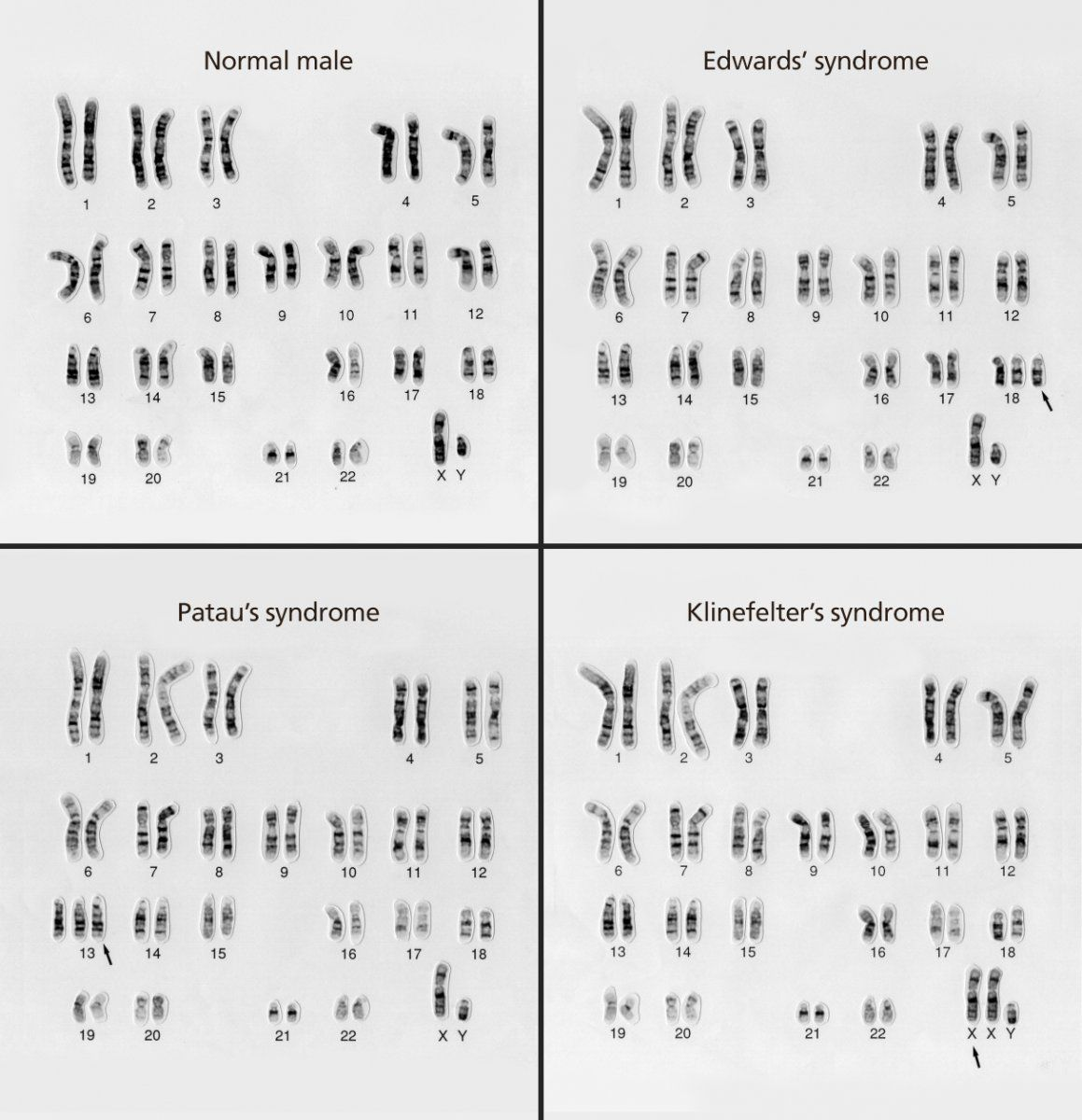 A Karyotype Is The Number And Appearance Of An Organism S
