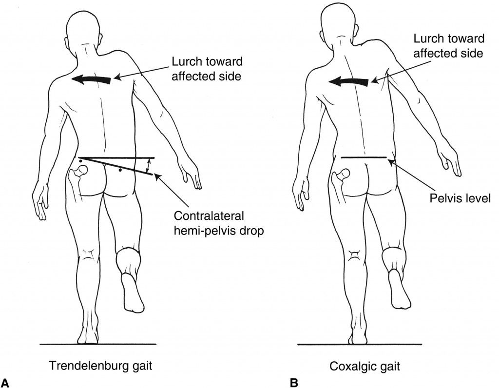 Ipsilateral Vs Contralateral What Arm Amp Leg Combination