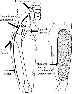 Lateral Femoral Cutaneous Nerve - Copyright