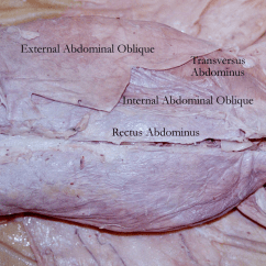 Cat Dissection Muscle Diagram Back 5 Pin To 11 Mhl Adapter Kaufen Saturn Muscles Labeled Specimens Thorax Abdomen
