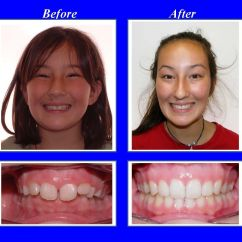 Rubber Bands Braces Diagram Guitar Wiring 2 Humbucker This Patient Had A Severe Overbite We Used Invisalign