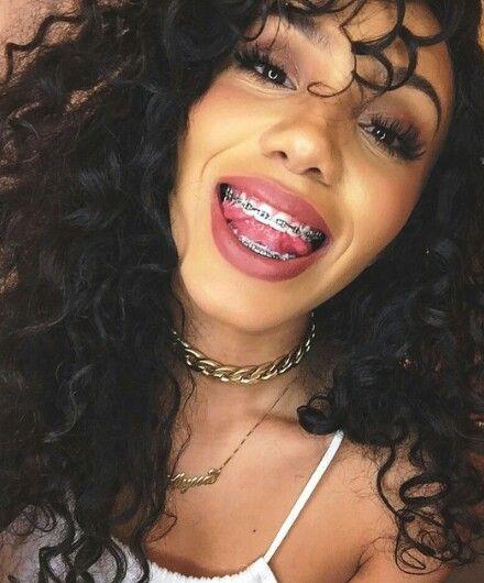 Tumblr Girls Gold Teeth
