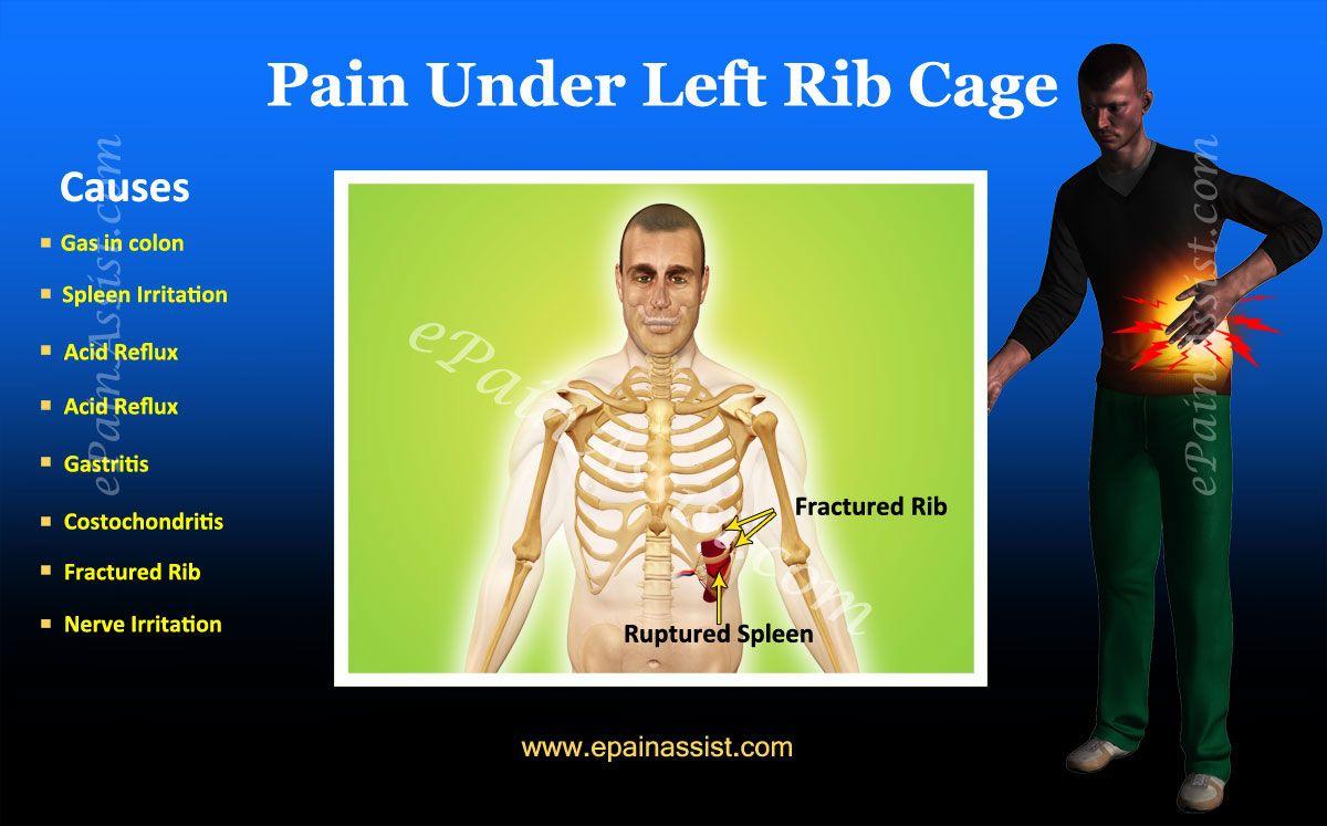 Lump Under Left Rib Cage