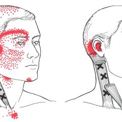 Face Pressure Points Diagram 12v Trailer Wiring Sternocleidomastoid The Trigger Point And Referred Pain