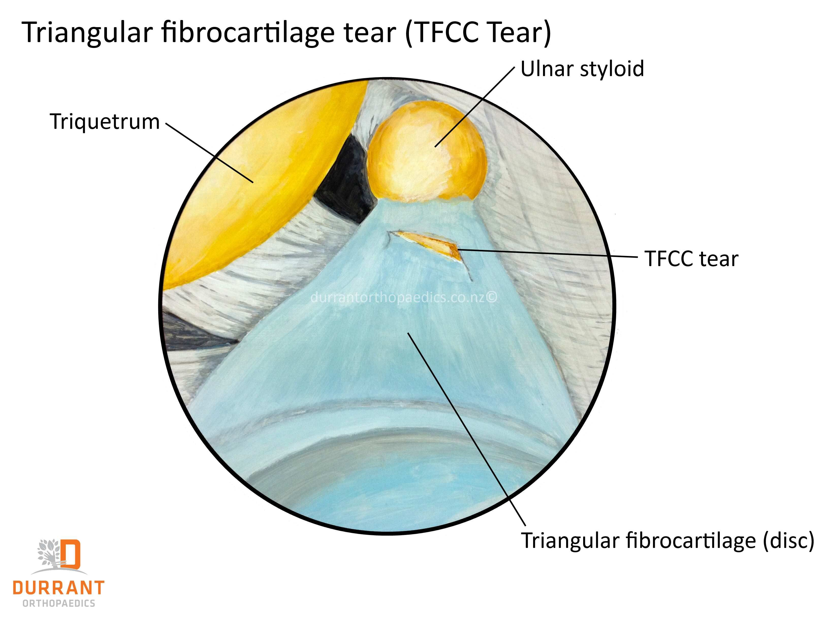 Close up of a TFCC tears (Triangular Fibro-Cartilaginous Complex) in your wrist.   Hand and Wrist Injuries   Pinterest   Close up. Search and Hands