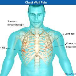 Fibromyalgia Pain Diagram Philips Electronic Ballast Wiring Costo Chondritis Costochondritis Chest