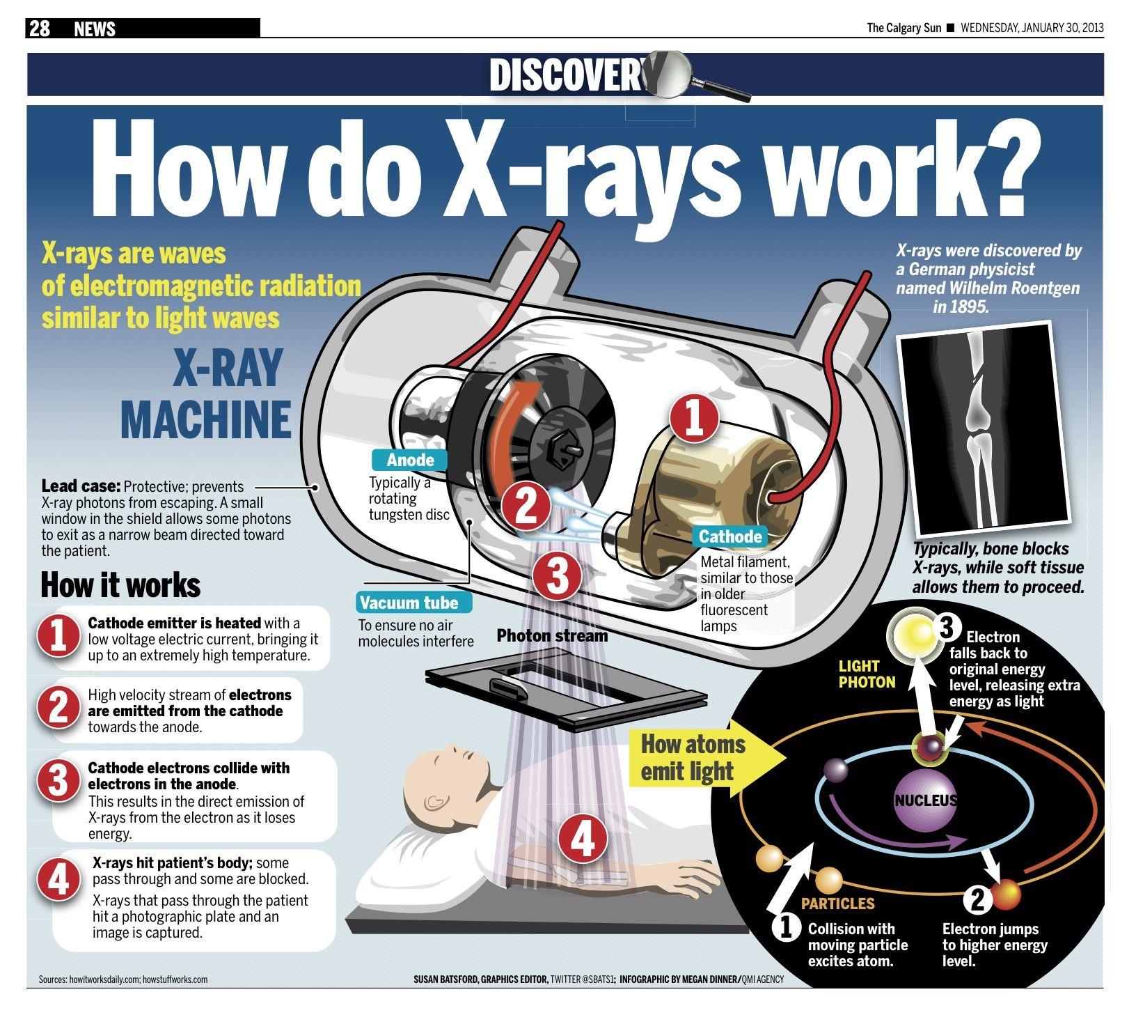 The 25 Best Xray Machine Ideas