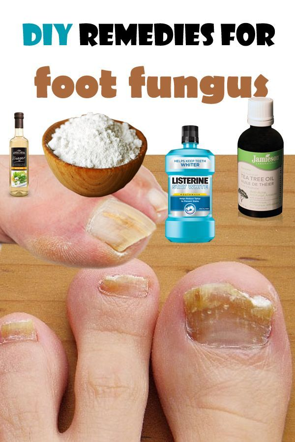 Get Rid Fungus Between Toes