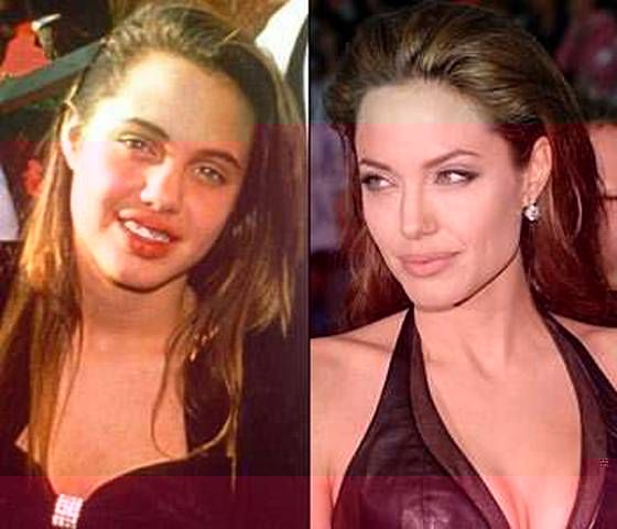Famous People Before And After  25 Celebrities Before And