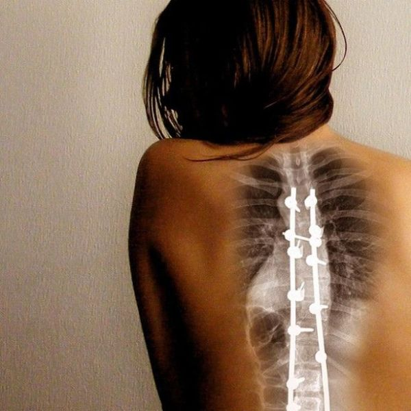 scoliosis scar cover tattoos