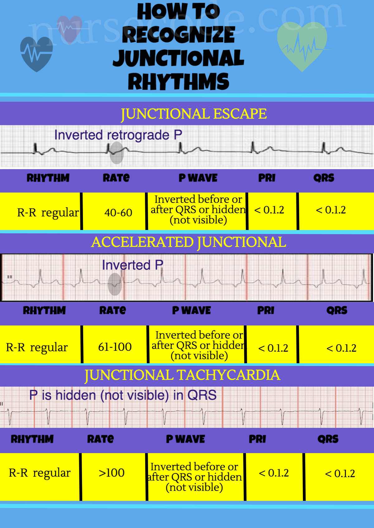 Junctional Rhythm Infographic
