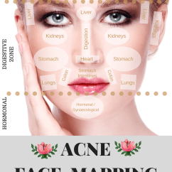 What Causes Acne Diagram Speakers Wiring Face Mapping Does Your Tell You