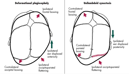 Positional Plagiocephaly, Part 1: A Practical Guide to
