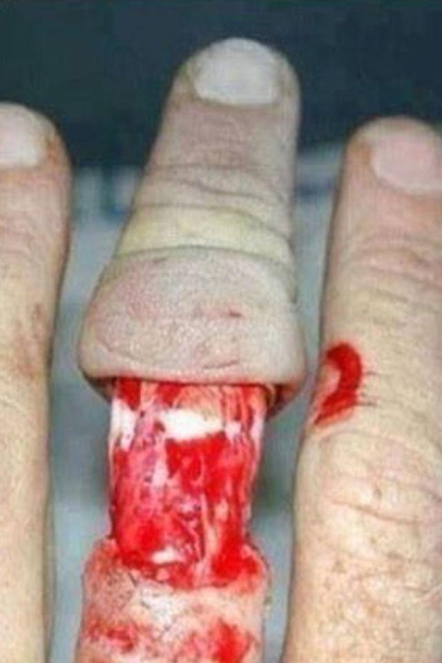 Ring finger injury  Modischer Schmuck 2018