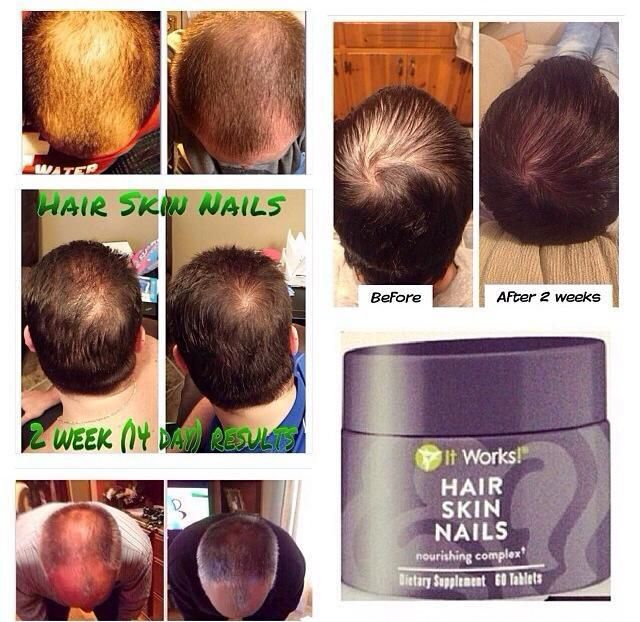 Itworks Hair Skin Nails - Best Skin In The Word 2018