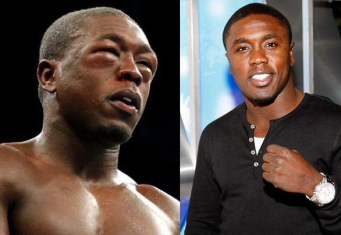 Image result for andre berto eyes
