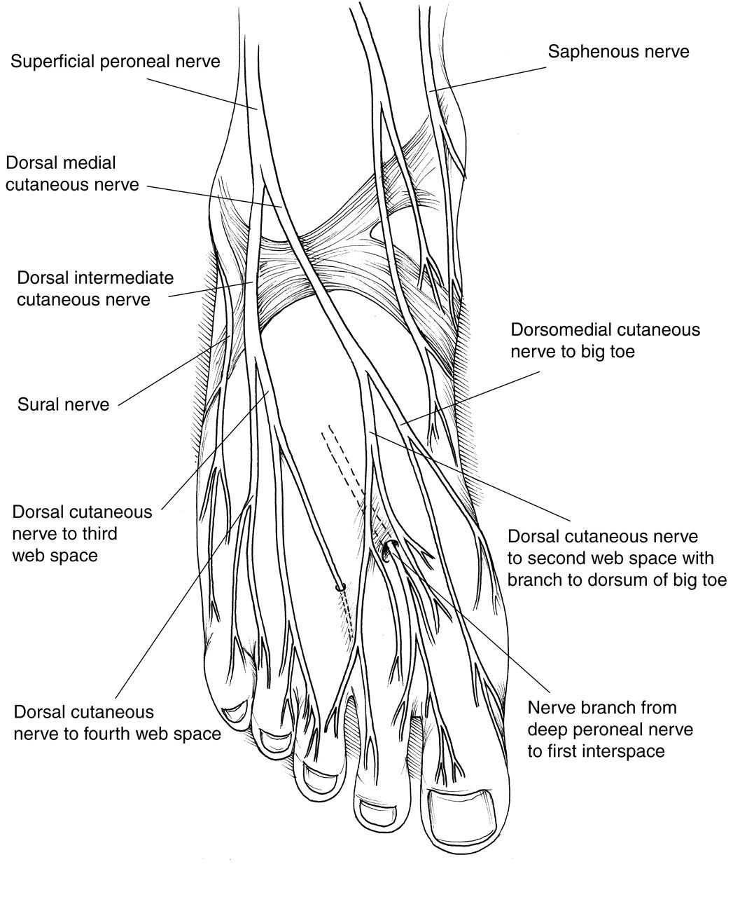 side foot pain diagram