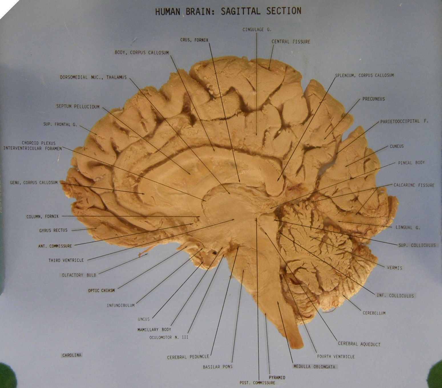 brain model diagram ceiling fan wiring uk the sagittal section anatomy labeled