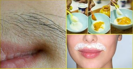 16 Amazing Home Remes For Unwanted Hair Removal Womans Vibe