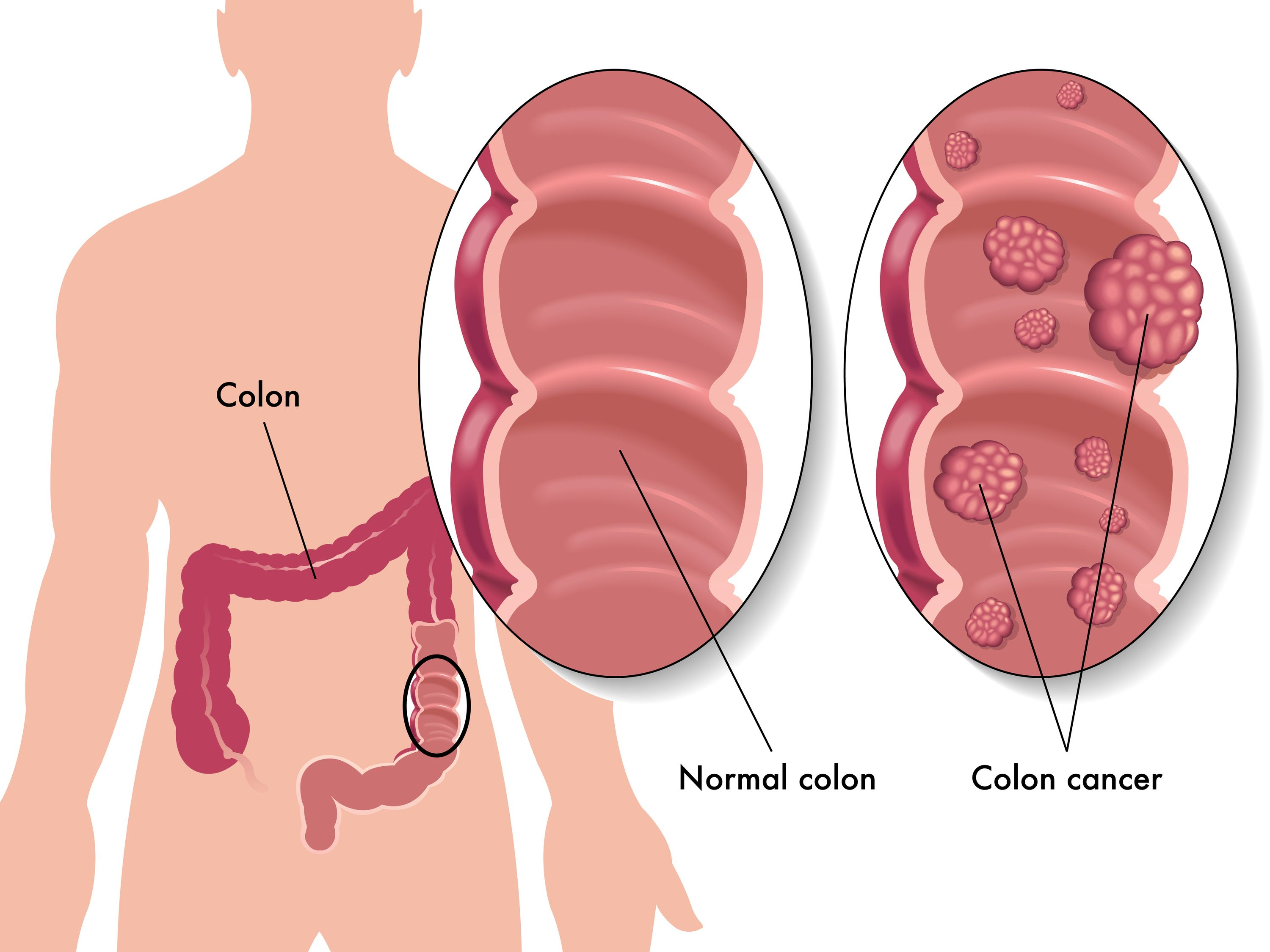 pathophysiology of colon cancer diagram p bass wiring a polyp or adenoma is an area abnormal tissue that indicates precancerous changes. not all ...