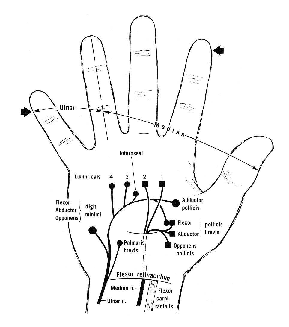 radial motor diagram