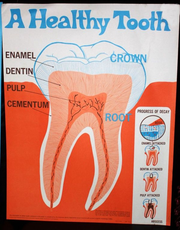 Large Dental Hygiene Posters - Mid-century 60s-70s