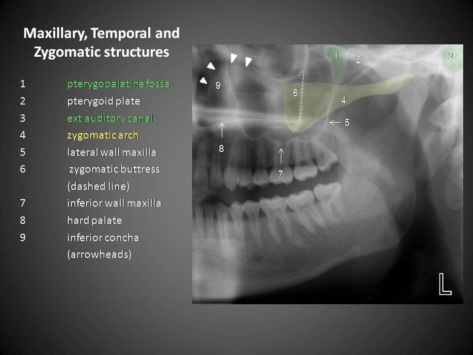 diagram for 5 gum time clock wiring mandible anatomy | radiographic pinterest anatomy, dental and radiology