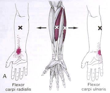 Flexor Carpi Radialis & Ulnaris Trigger Point Diagram